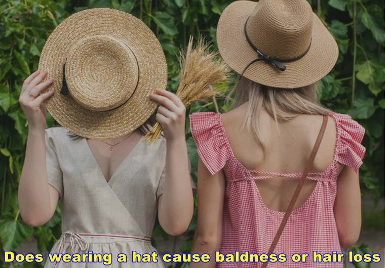 Does wearing a hat cause baldness or hair loss